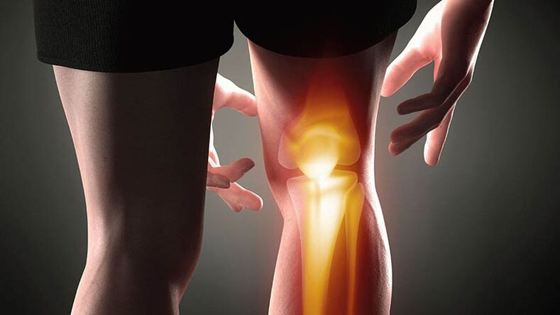 artroza e kembes